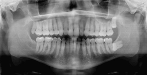 Wisdom teeth removal at Damascus Dental Group